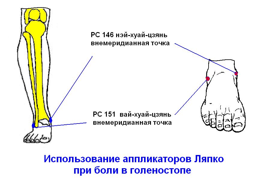 Биологическое Лечение Ревматоидного Артрита