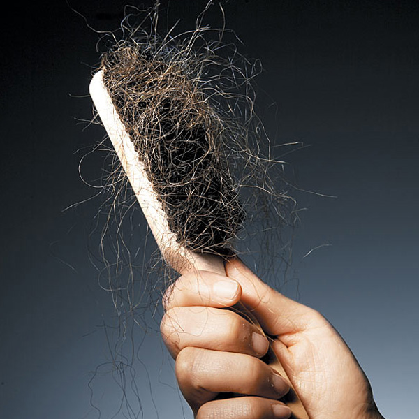 Hair Loss And Treatment