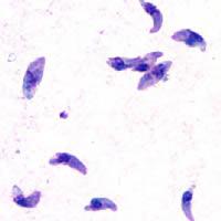 T. gondii tachyzoites nhìn trên kính hiển vi quang học.