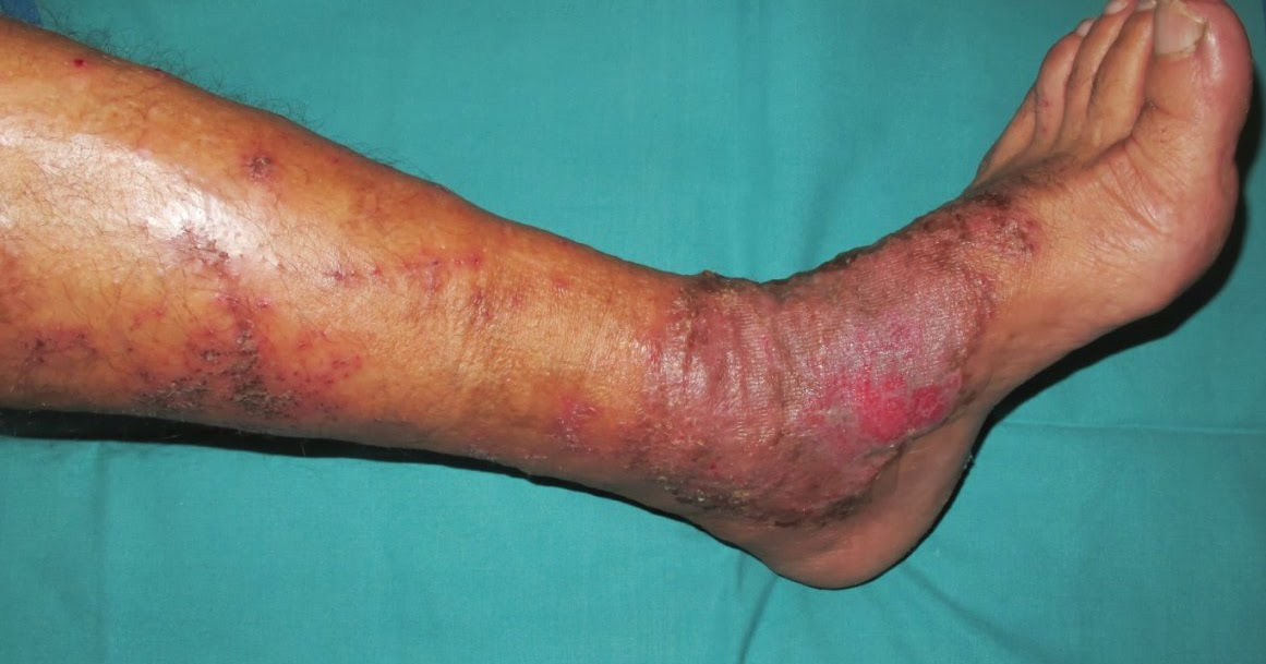 El especialista en el campo de la cirugía vascular esto