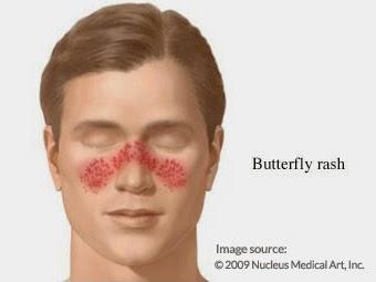 Sejarah Penyakit Lupus