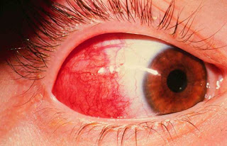 Images For Episcleritis Young Doctors Research Forum