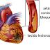 Infarto do miocárdio e angina