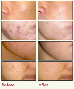 Skin Microdermabrasion before and after