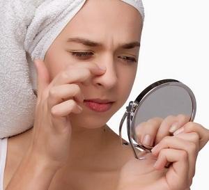 Cara Menghilangkan Komedo Di Hidung, Dagu Dan Wajah Dengan Cepat