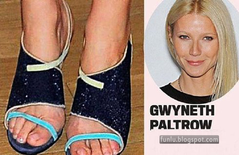 +Ugly feet celebrities+(11) Ugly Feet Of The Celebrities