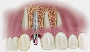 http://www.dentistinchennai.com/implant-procedures.php