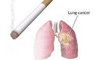 cara herbal mengobati kanker paru-paru