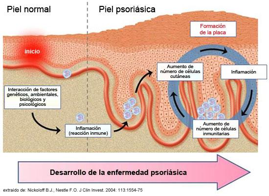 La psoriasis y las inoculaciones de la contraindicación