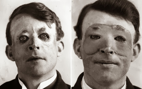 world's first skin transplant, 1917