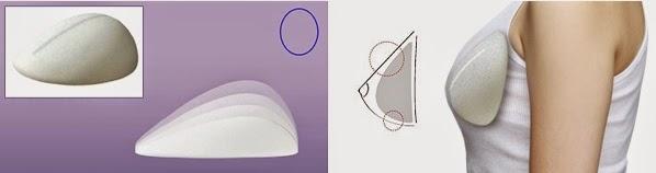 operasi payudara dengan implan tetes air di Wonjin