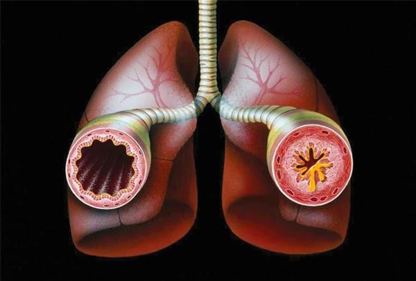 5 perguntas e respostas sobre a Asma