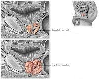 ace maxs untuk kanker prostat