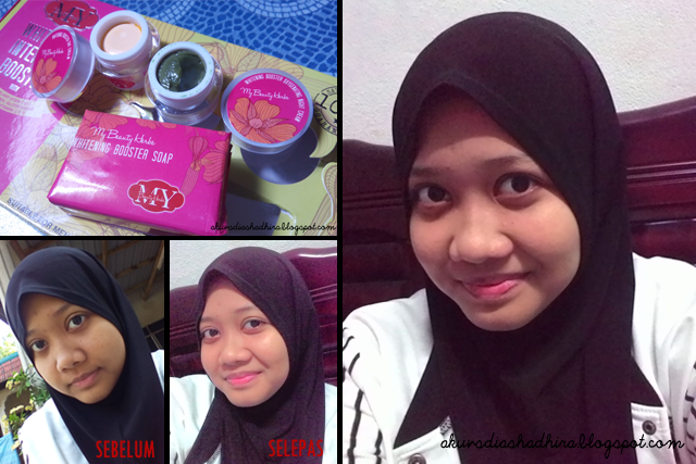 review MBH Whitening Intensive Booster Skincare