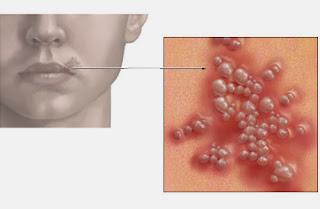 Macam-Macam Penyakit Herpes