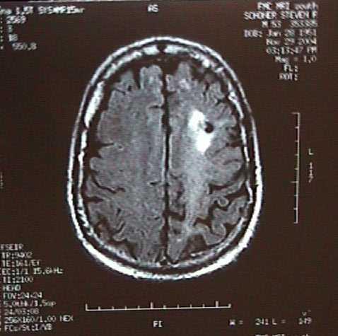 Brain Biopsy3