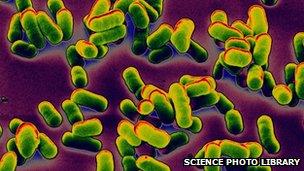 Teenager dies of bubonic plague