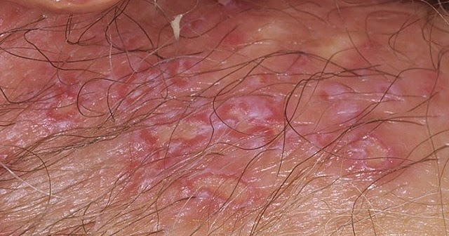 Vaginal Blisters and Sores: Don't Panic! | hubpages