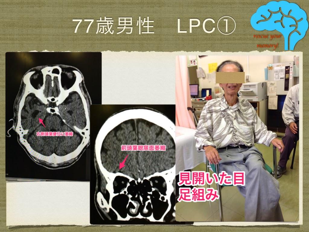 LPC レビー・ピック複合 頭部CTと本人写真