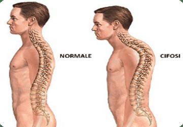 ipercifosi dorsale