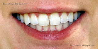 Kolor zębów po tygodniu wybielania metodą nakładkową NiteWhite