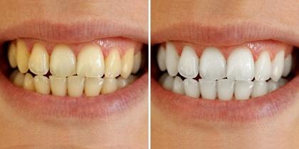 3-Maneras-De-Blanquear-los-dientes-en-casa