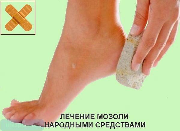 Вылечить мозоль на ногах в домашних условиях