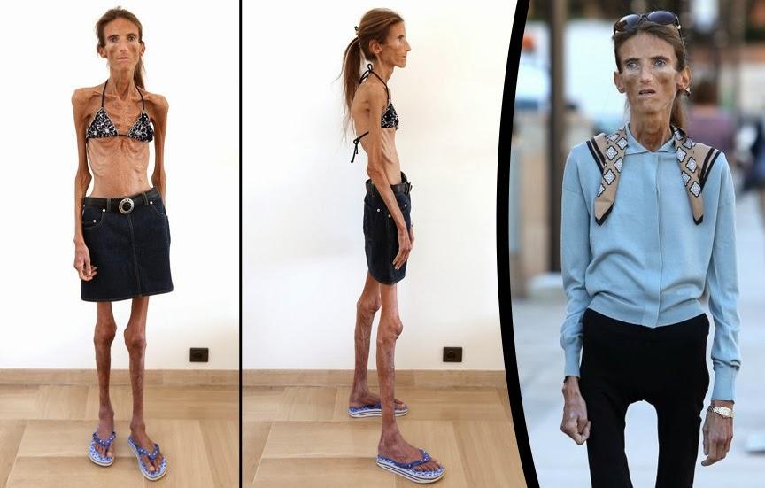 Wanita dengan badan terkurus