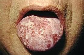 penyakit sipilis pada lidah