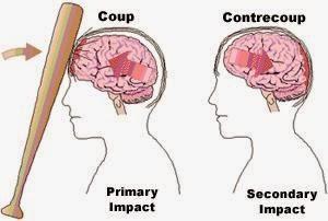Bahayanya Penyakit Lupa