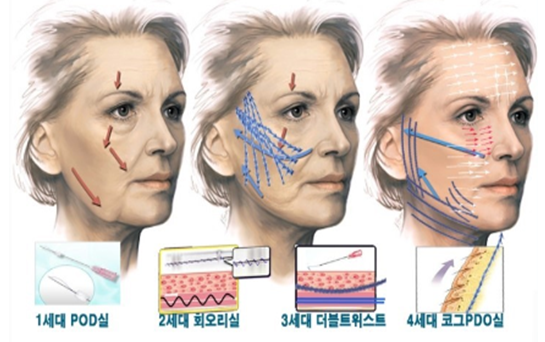 Non-surgical skin tightening and lifting, non-surgical, non surgical, skin, tightening, lifting, skin tightening, skin lifting