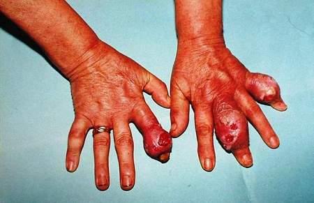 antiinflamatoarele nesteroidiene efecte adverse