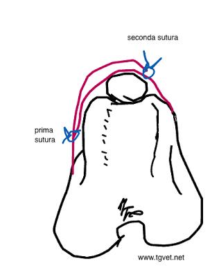 Lussazione rotulea: la chirurgia