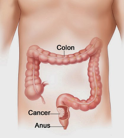should we avoiding colorectal cancer by Patients with widespread stage iv colorectal cancer would achieve no apparent   would be the potential benefit from avoiding downstream complications of  in  a disease that by and large we cannot cure, how can we as surgeons help.