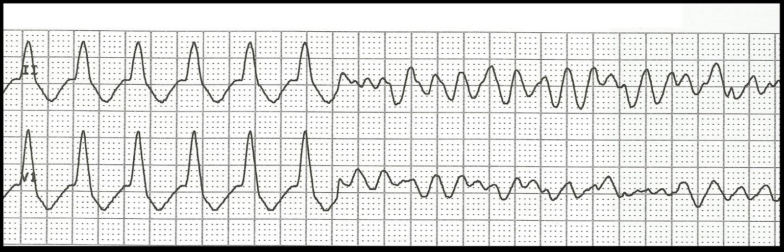 Float Nurse: ECG Rhythm Strip Quiz 97: Ventricular Rhythms Ventricular Tachycardia Rhythm Strip