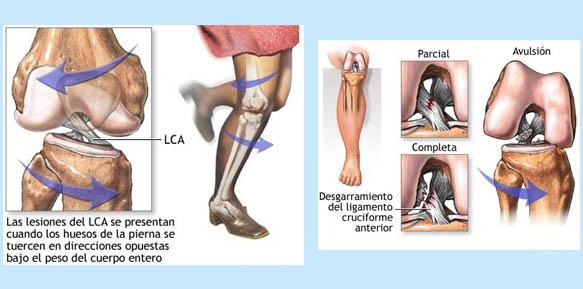 Anatomía aplicada a la Fisioterapia: Rotura del ligamento cruzado ...