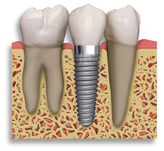 Dental Implants - Dental Health Associates