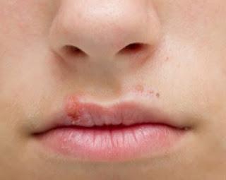 Six Common Causes of Lip Sores