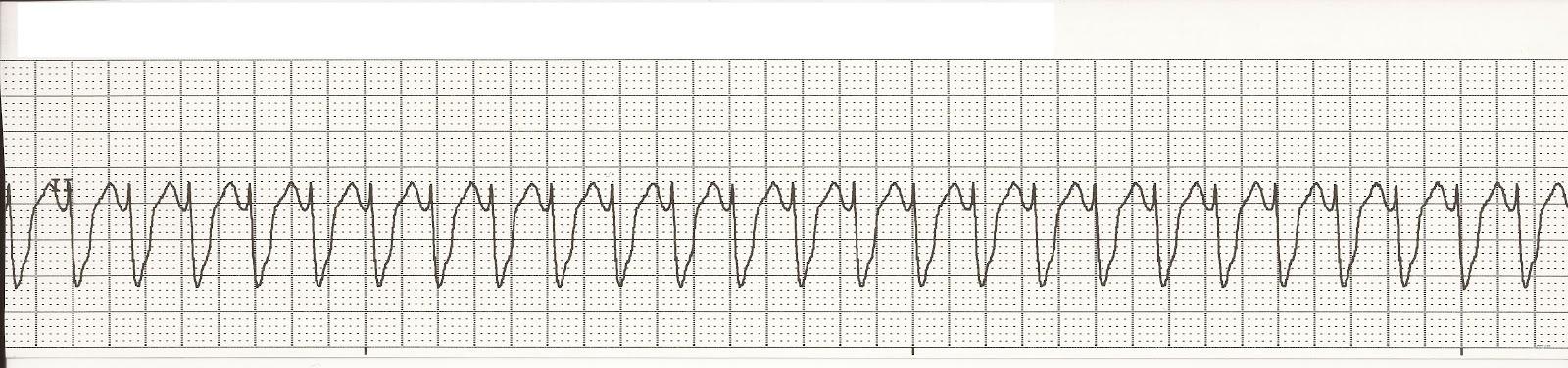 Float Nurse: October 2012 Ventricular Tachycardia Rhythm Strip