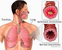 Obat Herbal Untuk Penyakit Asma