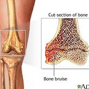 bone and muscle injuries