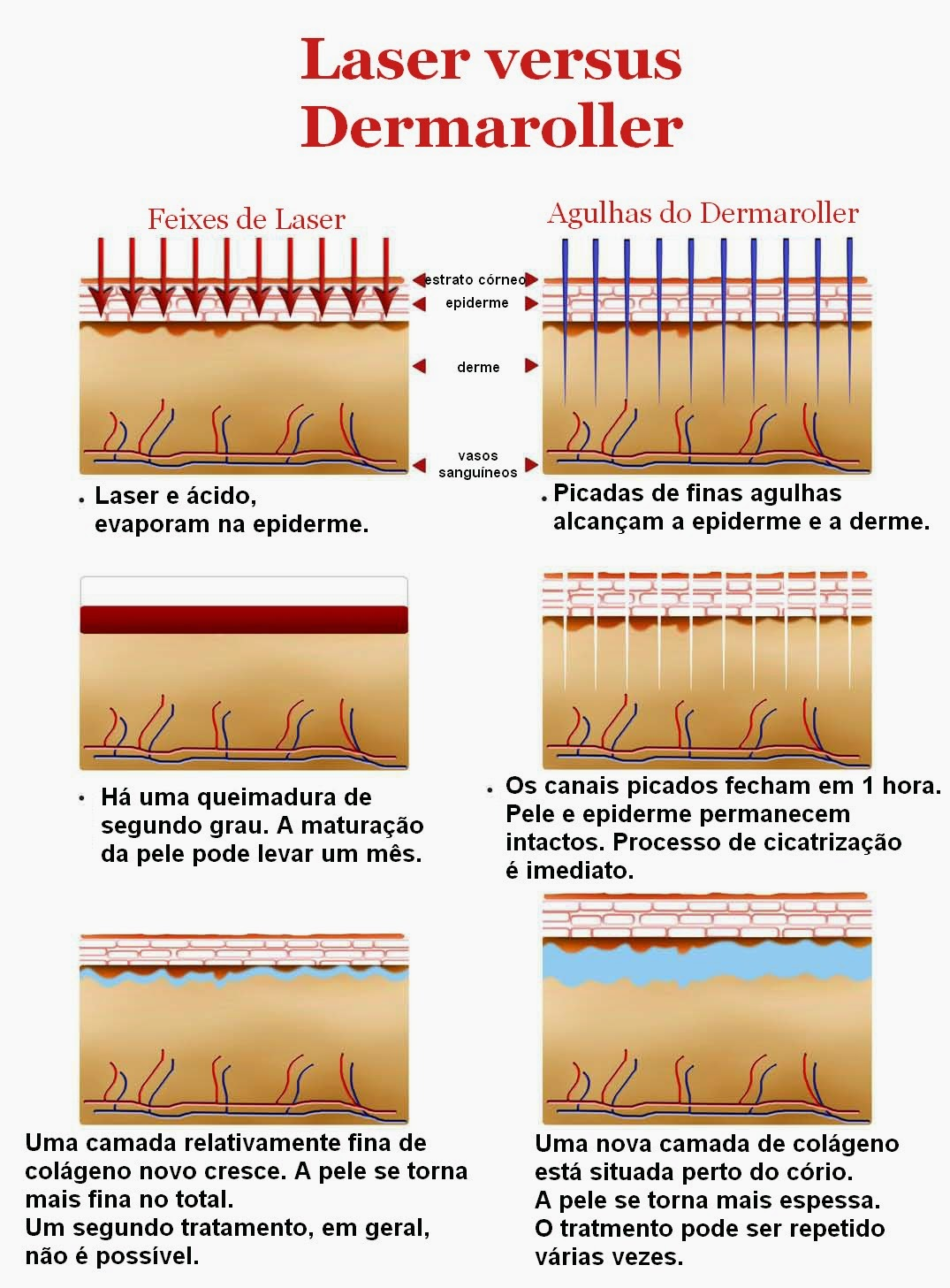 Comparação tratamento com laser x dermaroller
