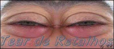 Pálpebras inchadas devido aos edemas matinais causados pela deficiência da micro-circulação linfática no contorno dos olhos