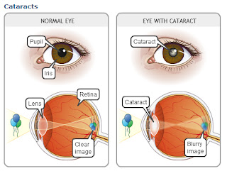 How to eliminate cataracts with natural remedies