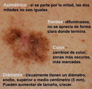 melanoma signos, lunar maligno caracteristicas,