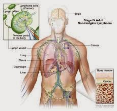 Nursing Care Plan for Hodgkin Lymphoma