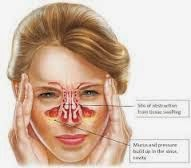 Cara Cepat Menyembuhkan Penyakit Sinusitis Secara Alami