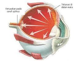 Pengobatan Untuk Sembuhkan Mata Glaukoma