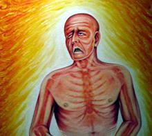 Kanker Payudara Pada Laki-Laki