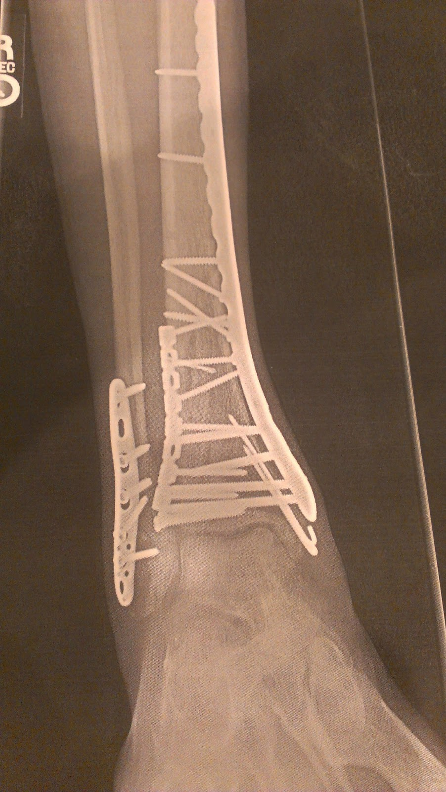 from a broken tibia, fibula, talus, and shattered ankle bone